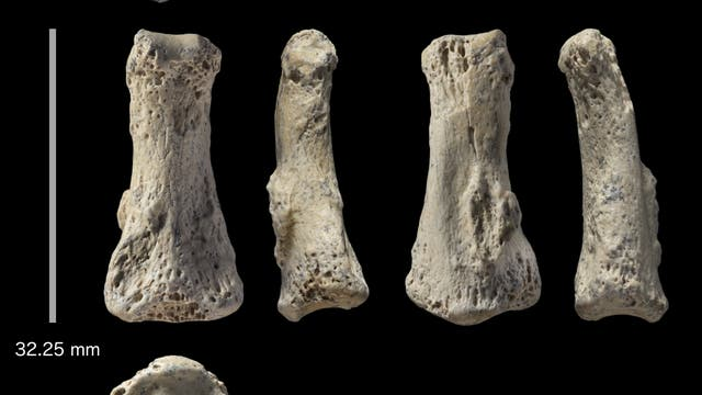 Der Fingerknochen in verschiedenen Ansichten
