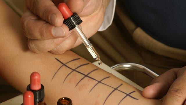 Arzt träufelt Allergene auf Haut eines Patienten