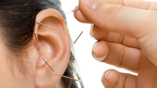 Ohr mit diversen Akupunkturnadeln. Ein bisschen wie beim Schneider, wenn ein Flicken gesetzt wird