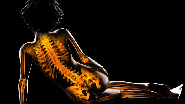 Knochen - Rückenansicht einer Frau