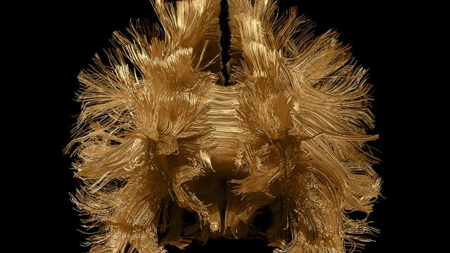 Gehirnbilder