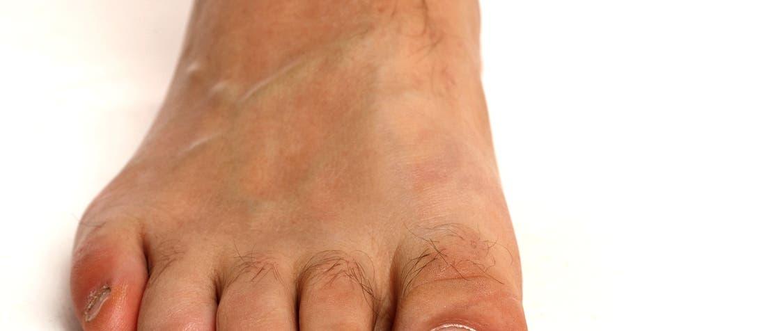 Menschlicher Fuß