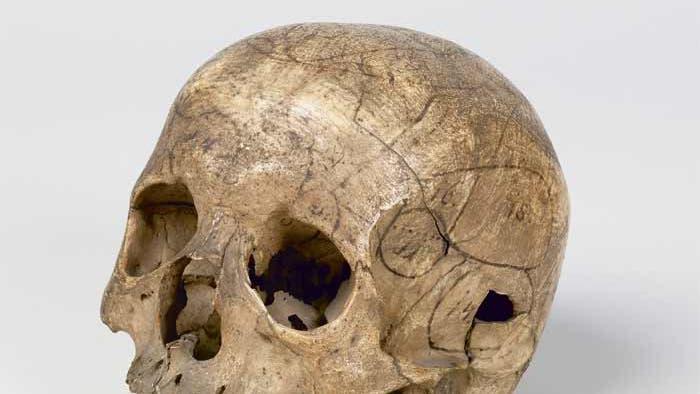 Gall'scher Schädel