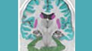 Gehirn beim Lernen