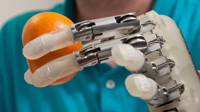 Handprothese mit viel Gefühl