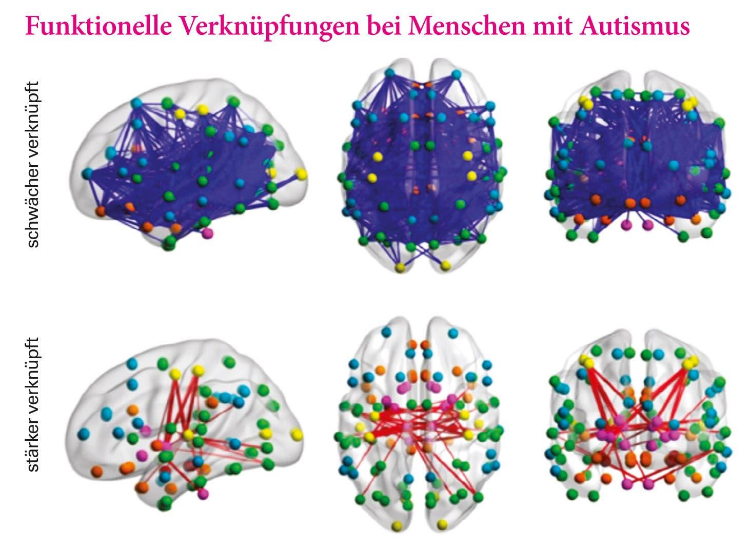 Funktionelle Verknüpfungen bei Menschen mit Autismus