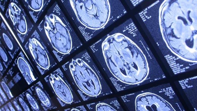 MRT-Hirnscans im Durchlicht