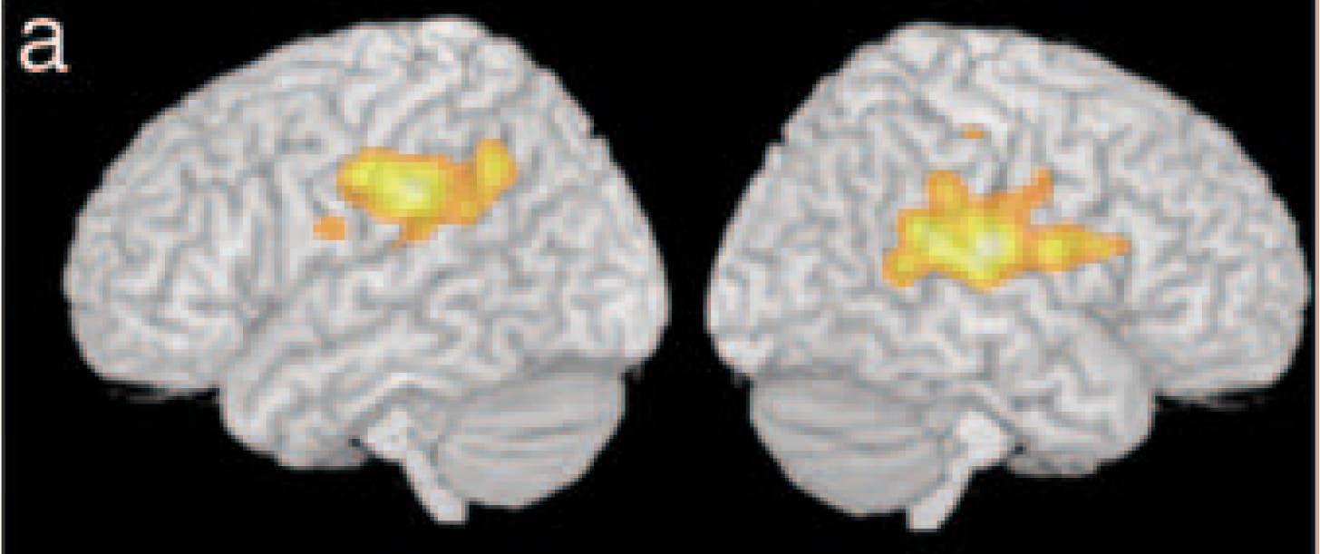 Dyslexie: neurologische Schäden in der linken Hirnhemisphäre