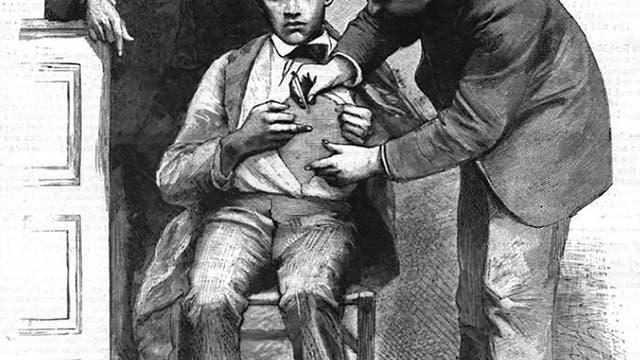 Louis Pasteur beobachtet Tollwutimpfung