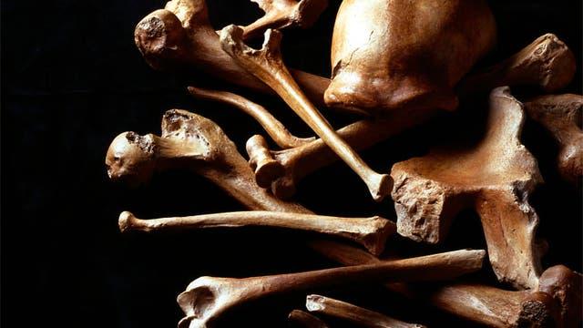 Epochale Knochen