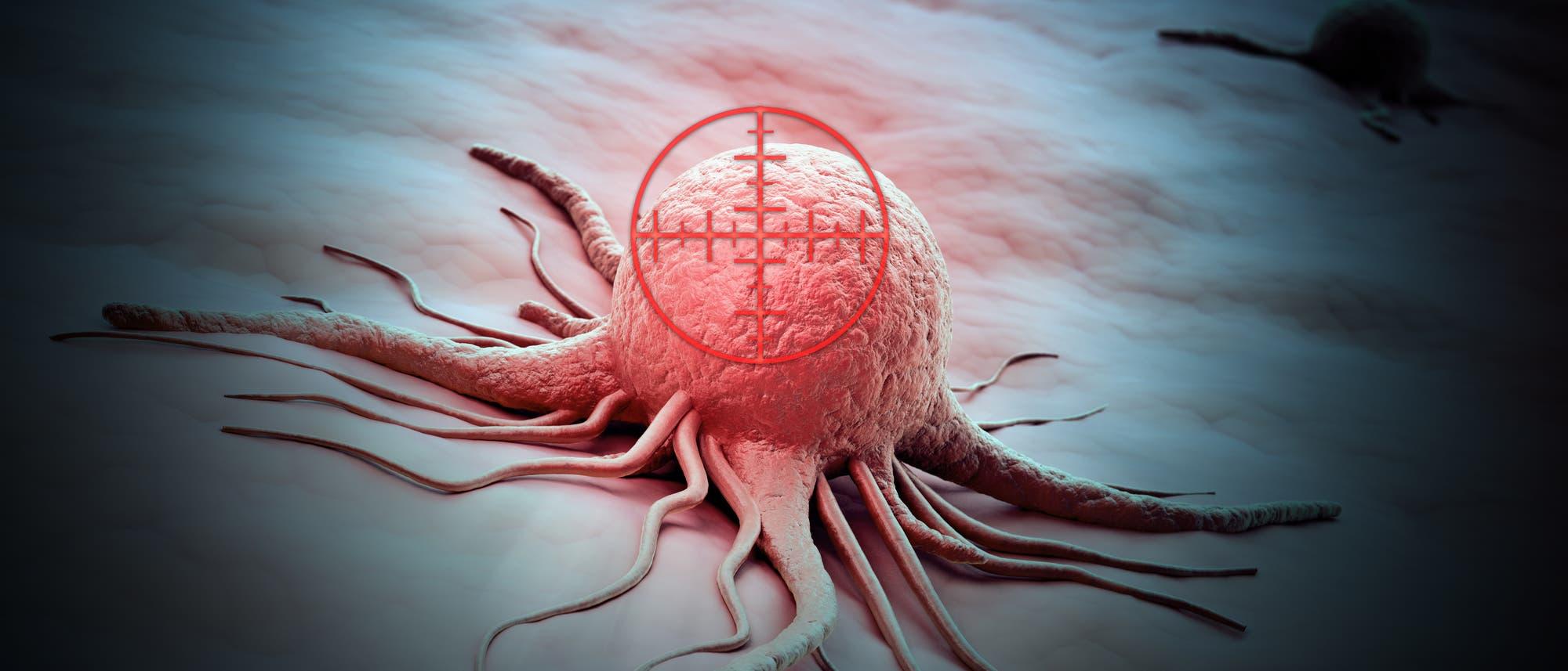 Krebszelle im Fadenkreuz