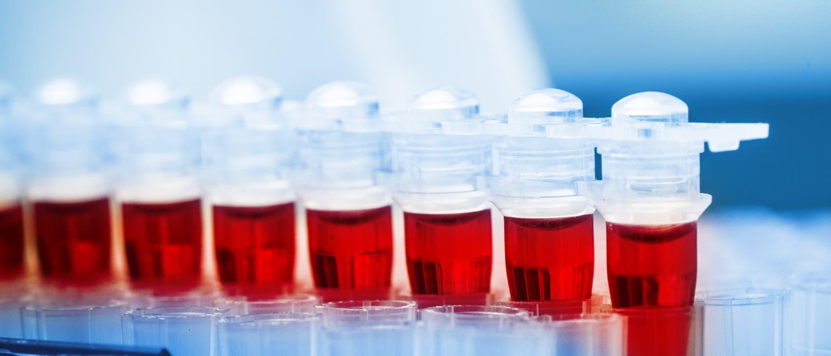 Gefährliche Abwehrmoleküle im Blut