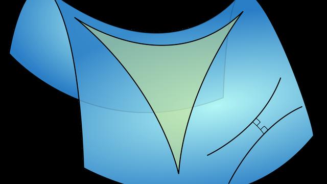 Hyperbolisches Dreieck