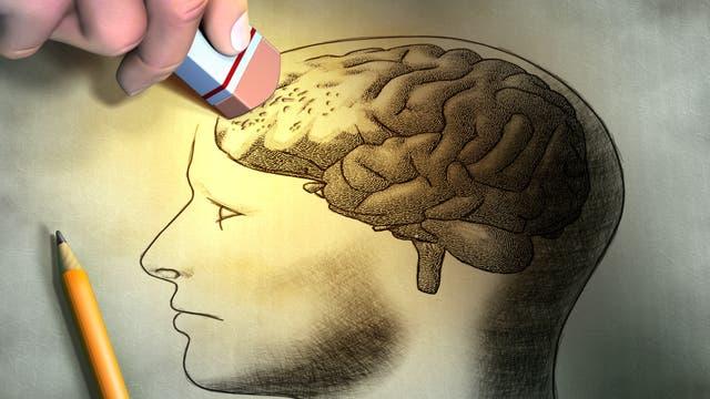 Alzheimer-Symbolbild Fotolia