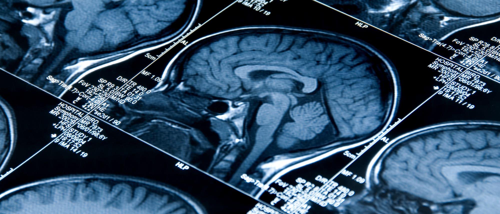 Schnitte mit dem Hirnscanner