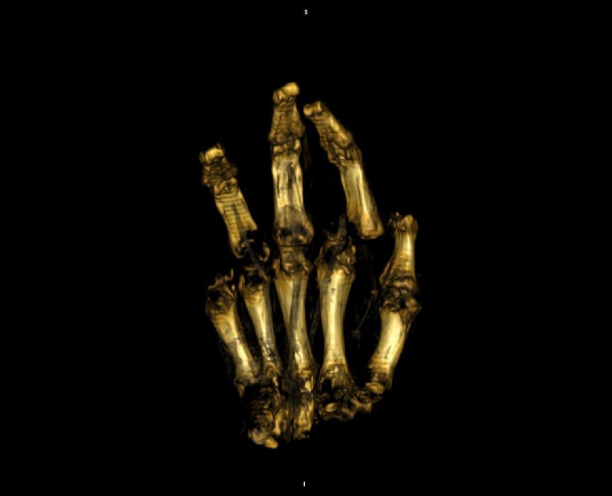 Schwarze Hand durchleuchtet