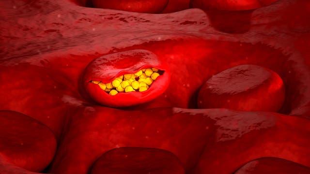 Malaria in Blutkörperchen