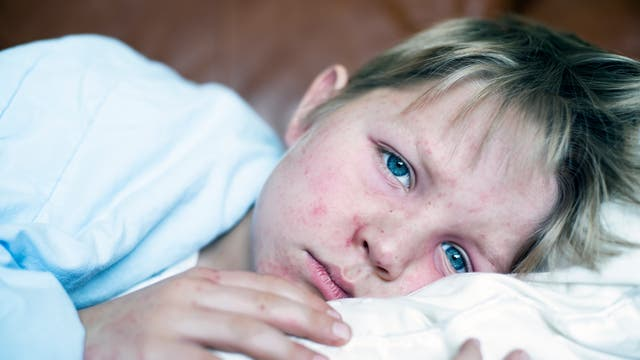 Junge liegt mit Masern im Bett und guckt betrübt