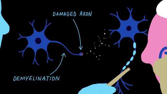 Forscher verfolgen drei Strategien, um Nervenzellen zur Regeneration anzuregen.