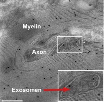 Versorgung des Axons durch Exosom