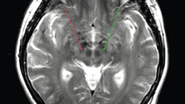 Neuronale Schrittmacher