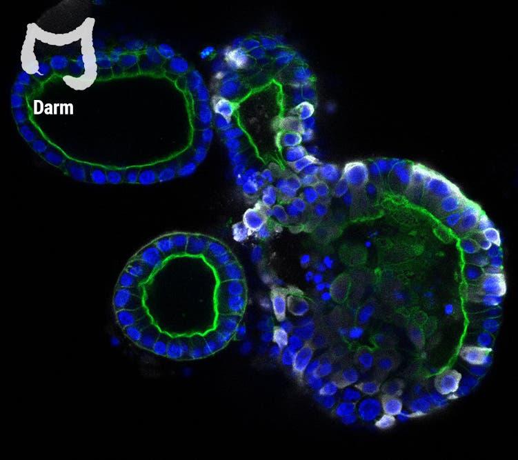 Auf dem Bild wird gezeigt, wie das Virus (weiß) das Darmorganoid infiziert. Das könnte erklären, warum manche Menschen Magen-Darm-Beschwerden bei einer Coronainfektion haben.