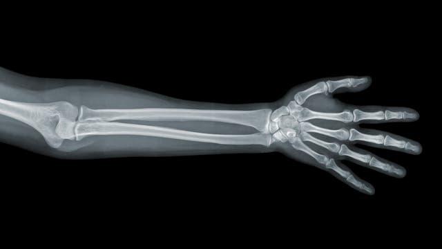 Arm und Hand im Röntgenbild