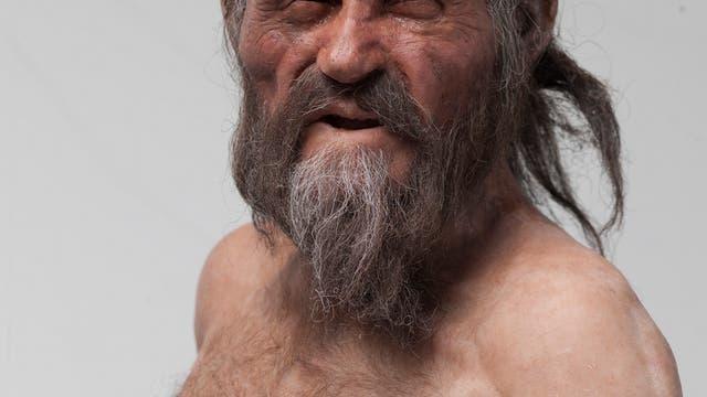 Forscher erhellen Ötzis Krankengeschichte