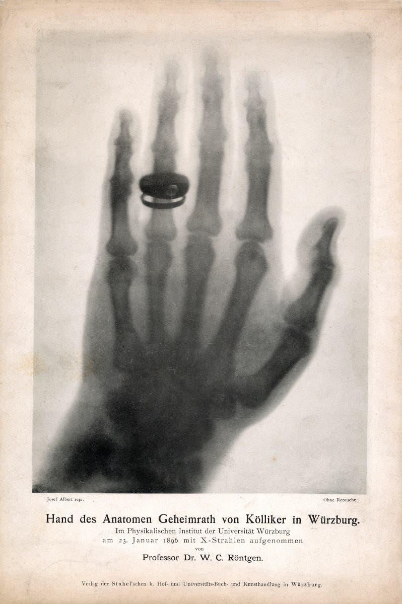 Röntgenbild der Hand des Anatomen Geheimrath von Kölliker vom 23. Januar 1896