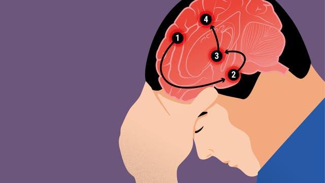 Migräne ist eine komplexe neurologische Erkrankung.