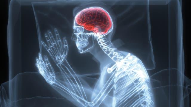 Gehirnaktivität im Schlaf