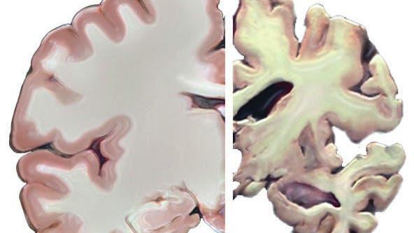 Gehirn von Alzheimerpatient im Vergleich