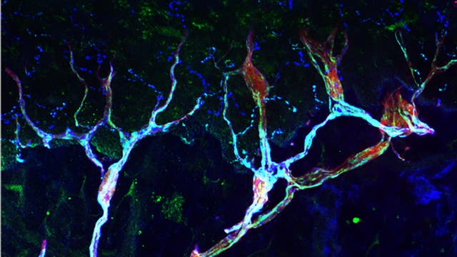 Schmerzrezeptoren in Mäusehaut