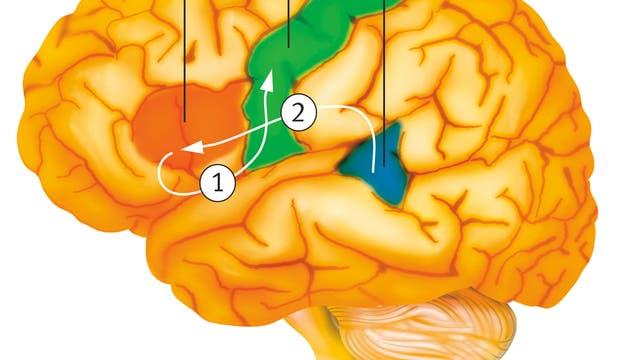 Zeichnung des Gehirns mit Broca-Areal und Wernicke-Areal