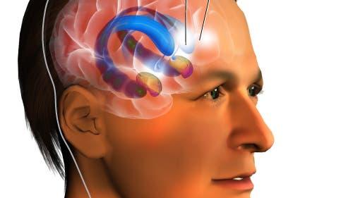 Zeichnung einer Tiefenhirnstimulation im Nucleus accumbens