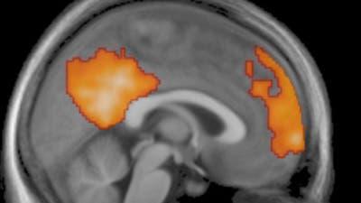 Gehirn beim Einschlafen