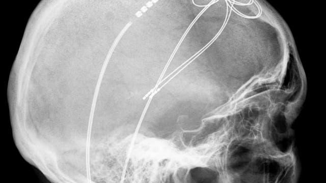 Elektroden eines Schrittmachersystems im Gehirn eines 61-jährigen Parkinsonpatienten.