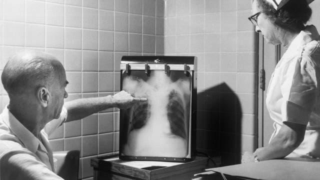 Röntgendiagnose Tuberkulose