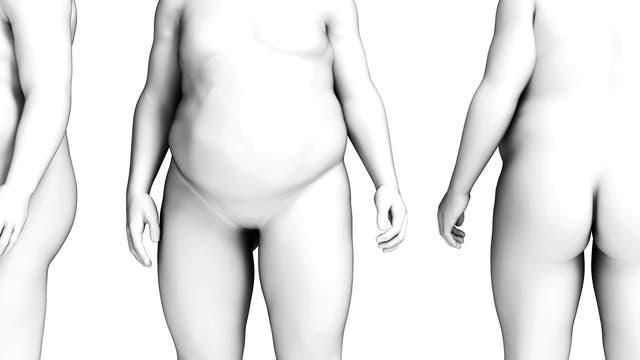 verschiedene Körperansichten eines dicken Mannes