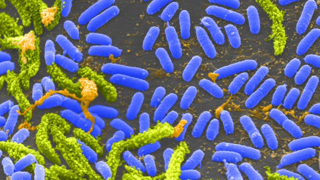 Rasterelektronenmikroskopische Aufnahme von Cholerabakterien (Vibrio cholerae; im Bild blau)