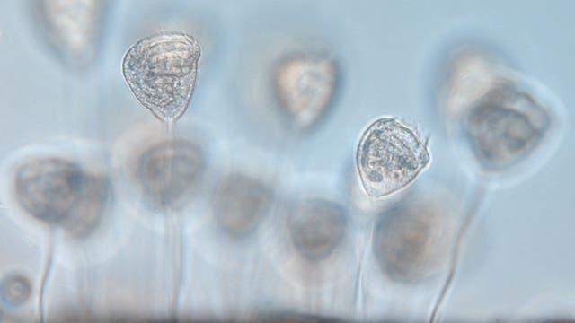 Wimpertierchen Vorticella