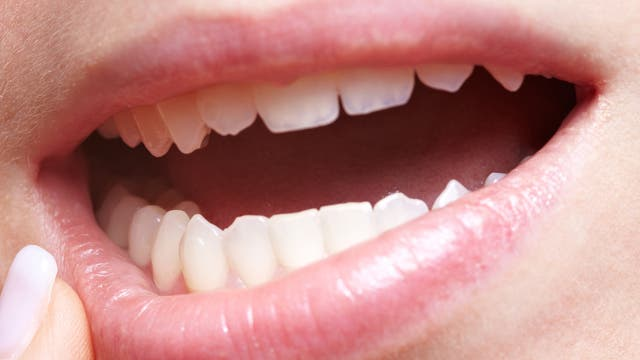 Frau mit Zahnfleischschmerzen