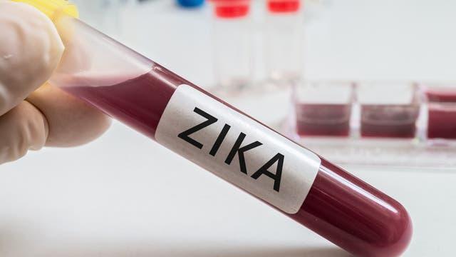 Zika-Nachweis im Blut