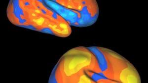 Dynamische Hirnregionen