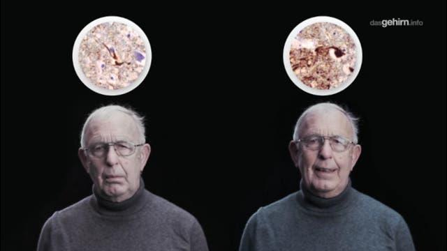 Vergesslichkeit gleich Alzheimer?