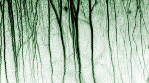 Kortikales Nervennetzwerk