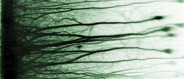 Dekorrelierte Neuronen