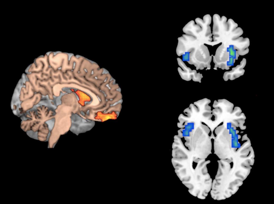 Dopamin an der richtigen und falschen Stelle