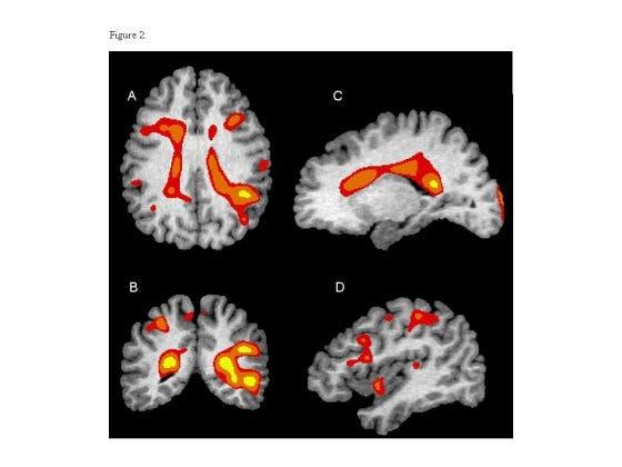 Hirnregionen mit reduzierter weißer Substanz