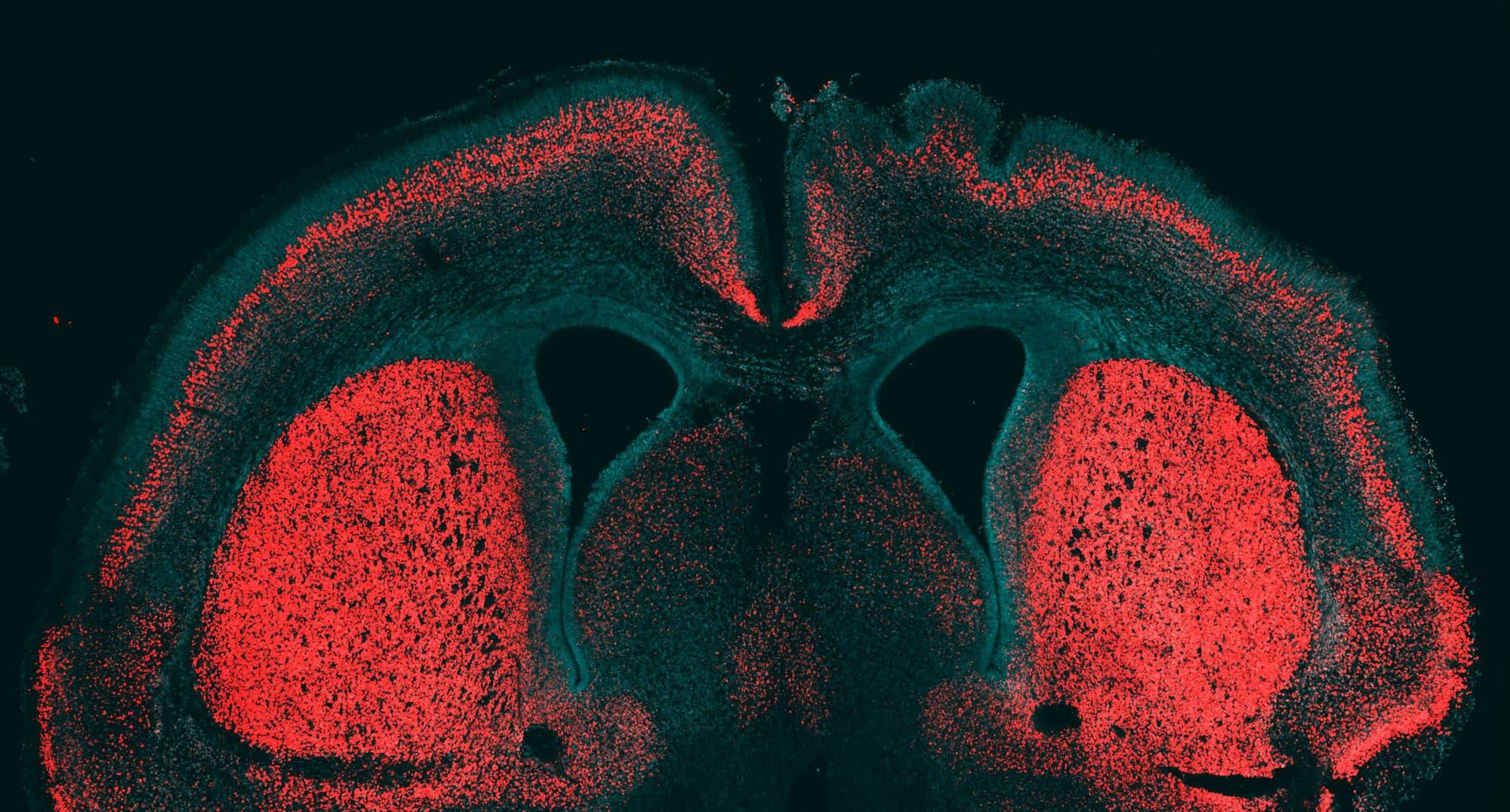 Großhirnrinde eines Mäuseembryos